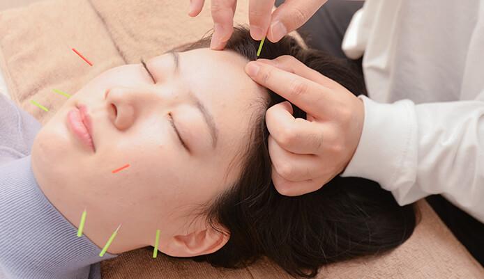 美容鍼の写真