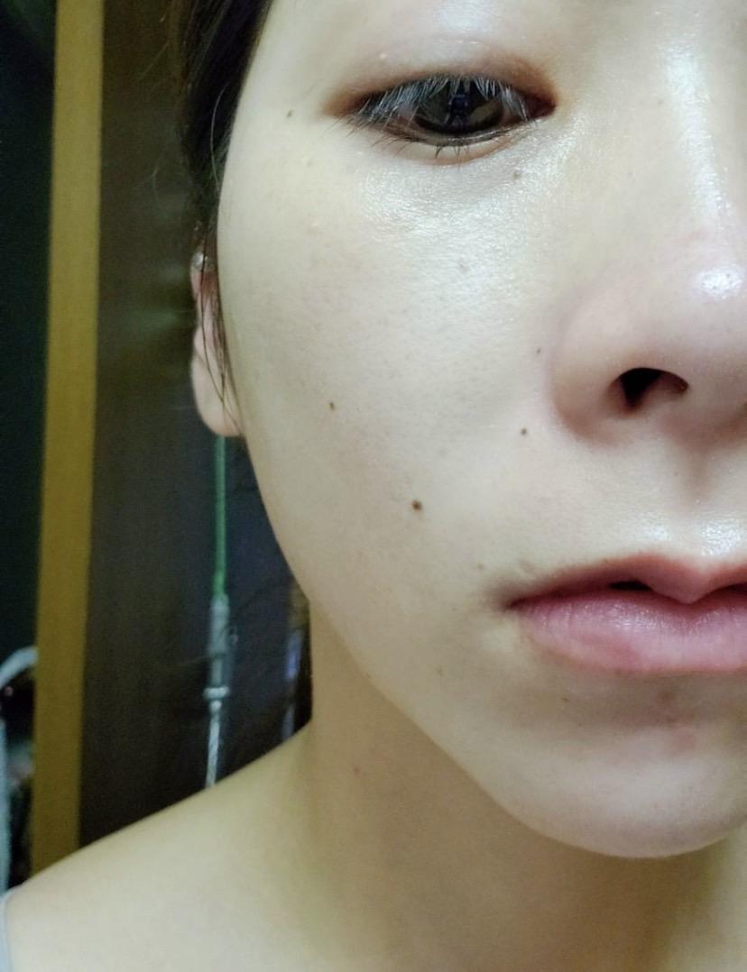 美容鍼における内出血2