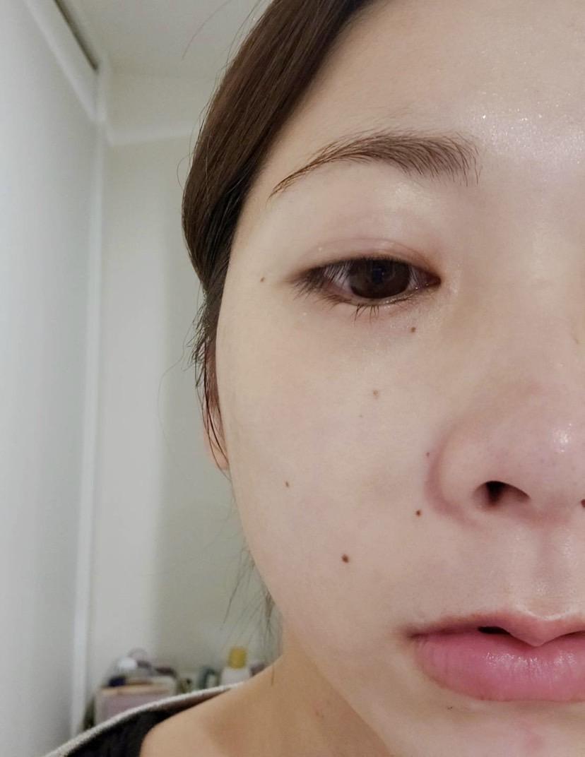 美容鍼における内出血3