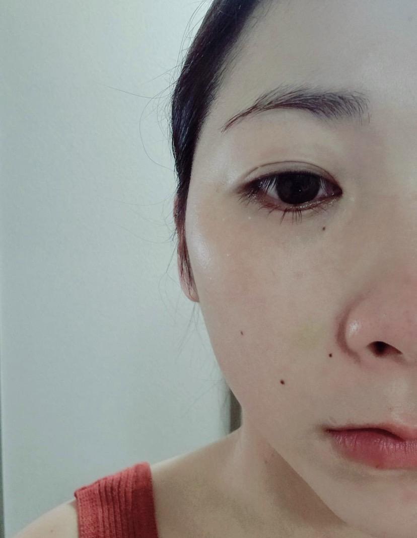 美容鍼における内出血4