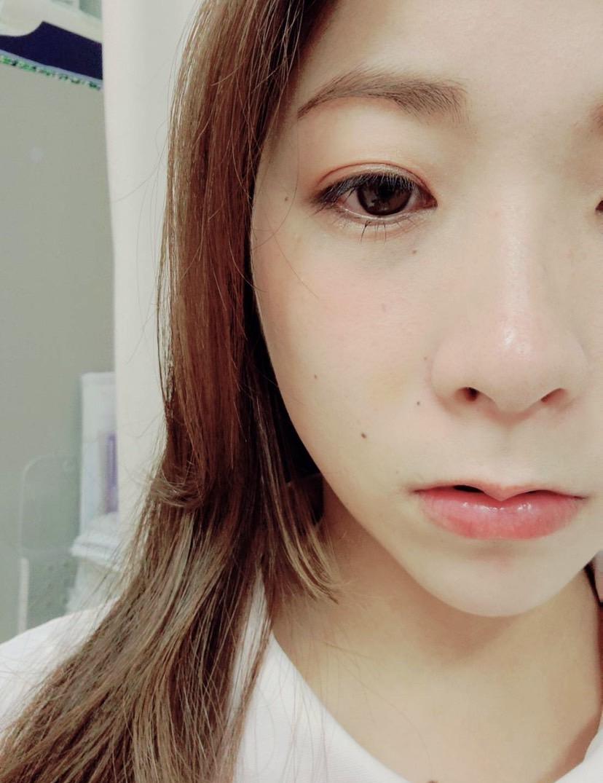 美容鍼における内出血7